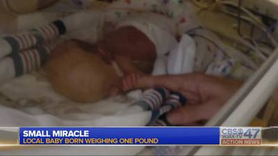 Miracle baby starts physical therapy